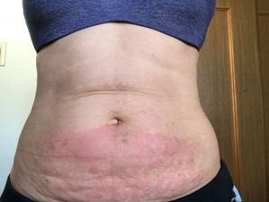 脂肪溶解注射 1回目後 当日 下腹部