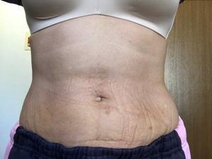 脂肪溶解注射 下腹部翌々日
