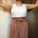 脂肪溶解注射 二の腕