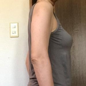 二の腕 脂肪溶解注射 3回注射後