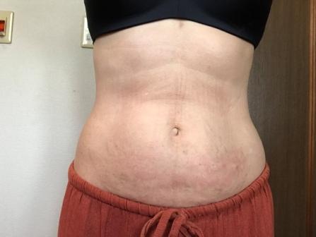 脂肪溶解注射 下腹部 2回目