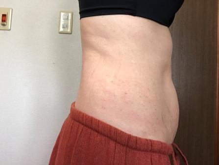 脂肪溶解注射 左側腹部 2回目