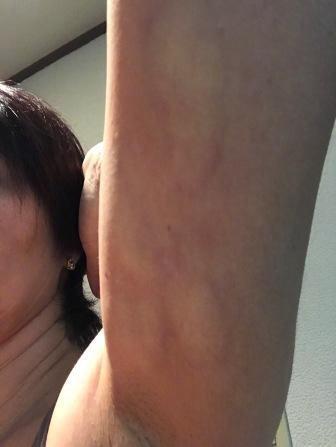 脂肪溶解注射後の二の腕