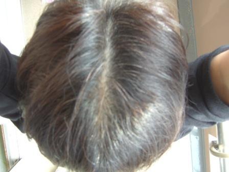 利尻ヘアカラートリートメントで染めた頭髪