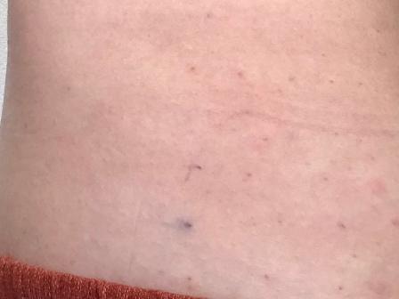 脂肪溶解注射の針を刺した痕