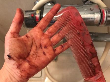 ポーラの白髪染めグローイングショットカラートリートメントで手が染まった状態