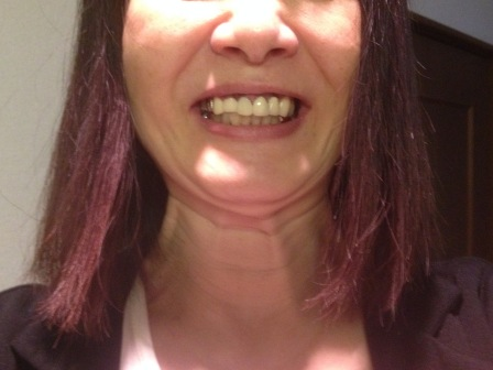 上前歯の仮歯が入りました!