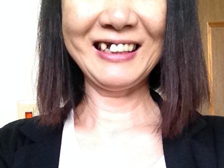 前歯が抜けた写真