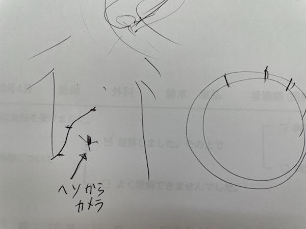 担当医師による腹腔鏡手術の穴開け挿入箇所説明(手書き)